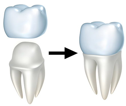 dental crowns example