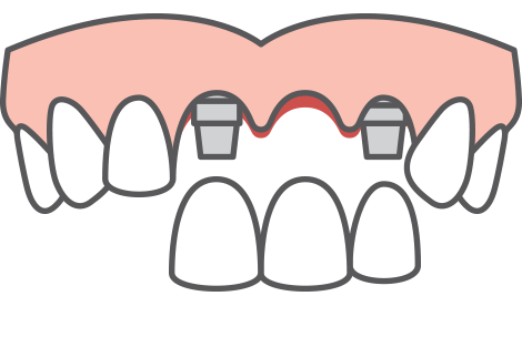 service blurb multiple tooth implants