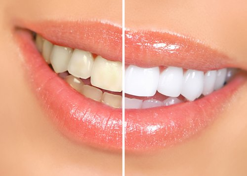 teeth whitening cardinia dental clinic