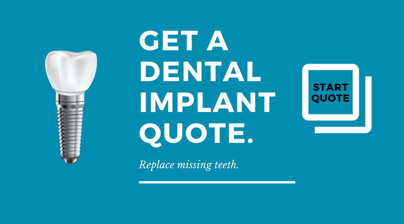 DENTAL IMPLANT quote